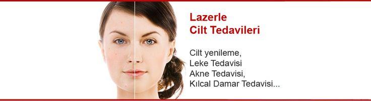 Cilt Uygulamalar� http://www.lazerline.com.tr/
