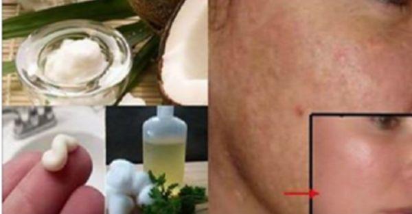 No gaste dinero en láser, píldoras o cremas, lavarse la cara con esto… y eliminarás las manchas, arrugas y acné parece magia !!
