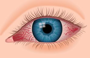 Pink eye symptoms and treatment