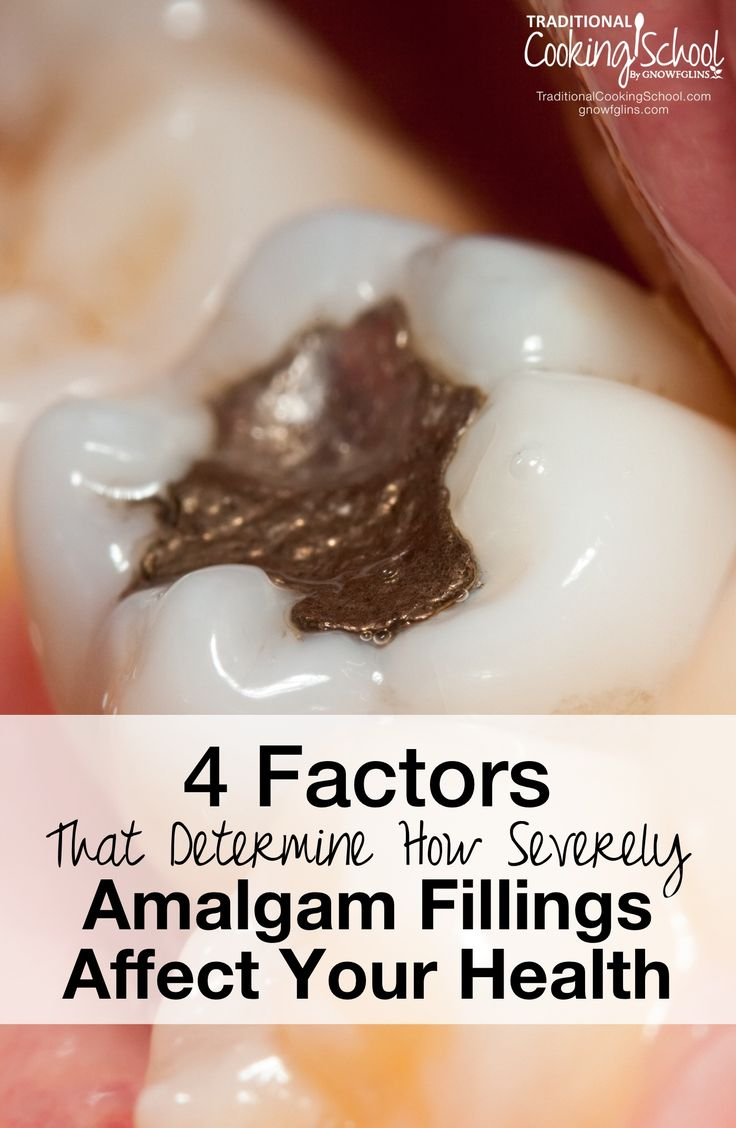 4 Factors That Determine How Severely Amalgam Fillings Affect Your Health   Does long-term, chronic exposure to low doses of mercury vapor pose any risks? What might the health effects be? And, are there any subsets of our population who might have greater sensitivity to mercury? These are the questions we will answer in this continuation of our discussion on mercury amalgam fillings.   TraditionalCookingSchool.com