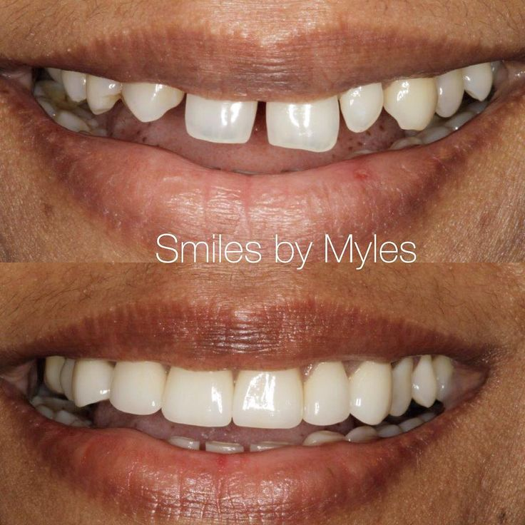 Braces does not help when spaces are this big. Porcelain veneers made this smile fabulous