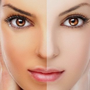 Skin lightening treatment that gives you a fair skin tone. For more information visit http://hemapant.com/skin-lightening-treatment-delhi/