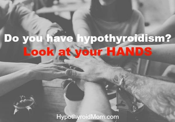 Do you have hypothyroidism? Look at your hands HypothyroidMom.com #hypothyroidism #hands #nails