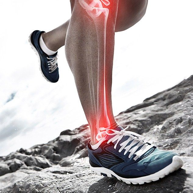 Shin splints after a long break - What's behind lower leg pain and how to overcome it - Runner's World