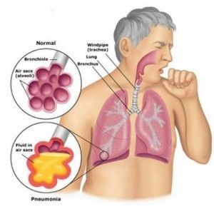 Natural Treatments for Pneumonia
