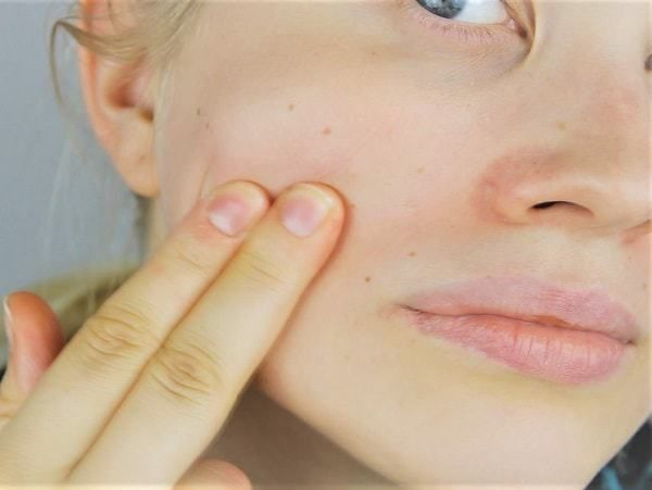 How to remove #age #spots
