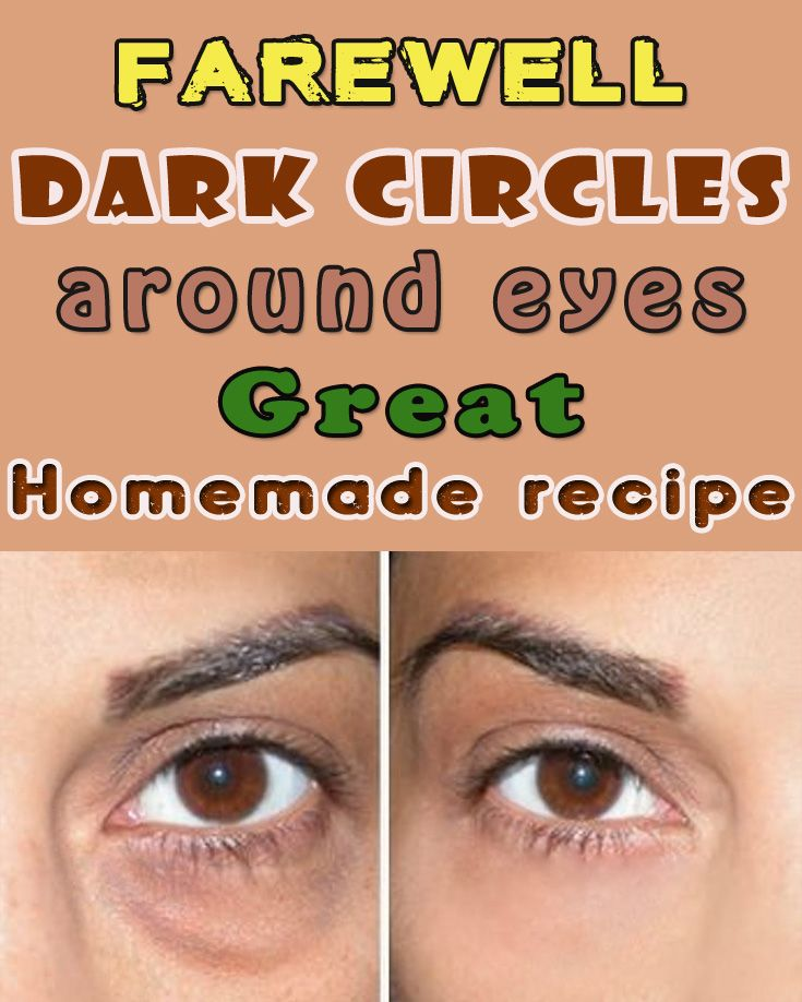Say farewell dark circles around eyes.Great homemade recipe.
