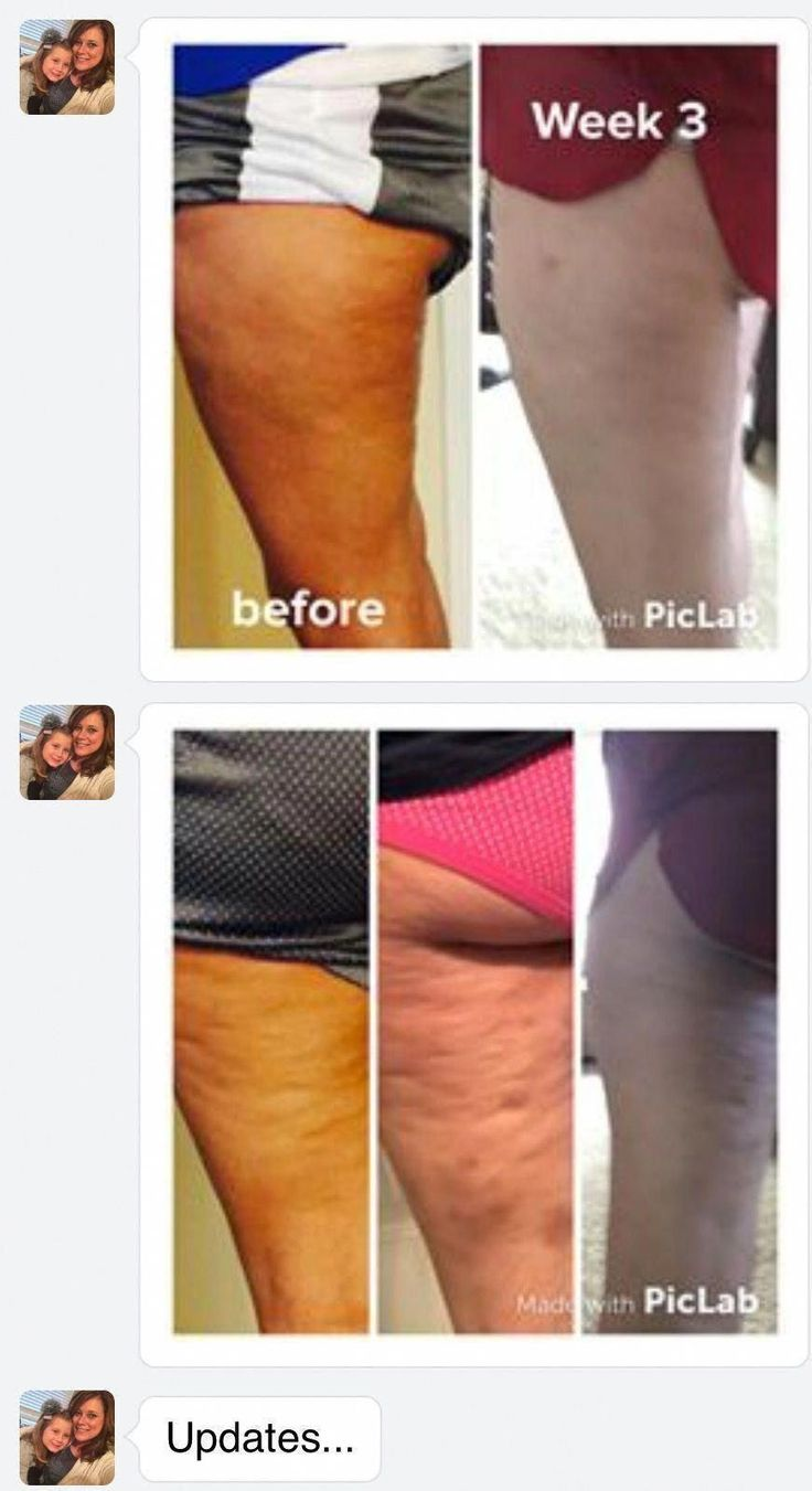 What Truly Operates to obtain Rid of Cellulite #CelluliteRemovalTreatment #AntiCelluliteExercises #ProfessionalCellulite…