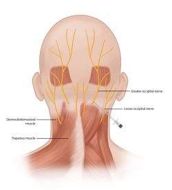 What is an Occipital Nerve Block? A Occipital Nerve Block is an injection of local anesthetic and steroid around the occipital nerve. This is used to treat chronic head pain. This injection can be used for therapeutic as well as diagnostic.