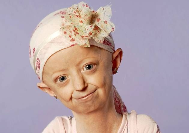 This is Haley Okines, a girl with the disease progeria, which makes you age 8 times faster then usual, she is sucha fighter and she is my hero.