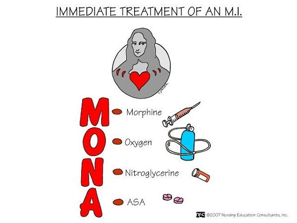 Myocardial Infarction Treatment - Nursing Mnemonics. See more: http://www.nursebuff.com/2014/06/nursing-mnemonics/