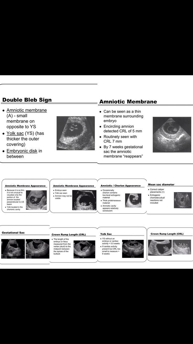 802 best jineko images on pinterest anatomy health and medicine ultrasound radios anatomy anatomy reference nvjuhfo Gallery