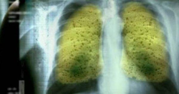 Οι καπνιστές, καθώς και εκείνοι που έχουν κόψει το κάπνισμα…θα πρέπει να γνωρίζουν ότι οι πνεύμονές τους είναι γεμάτοι από πίσσα και νικοτίνη. Το άρθρο αυτ