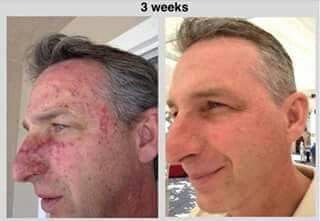 These results were made by using Nerium AD Night Cream. 30 Day Money Back Guarantee!MSG Me or order at kaseyryan.nerium.com