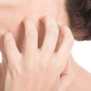 Hắc lào gây ngứa ngáy khó chịu