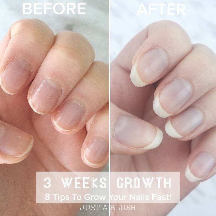 How To Grow Your Nails Fast! | Just A Blush