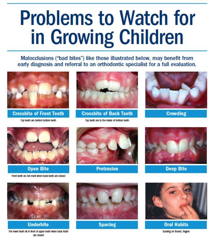 9 best Crooked teeth images on Pinterest | Crooked teeth ...