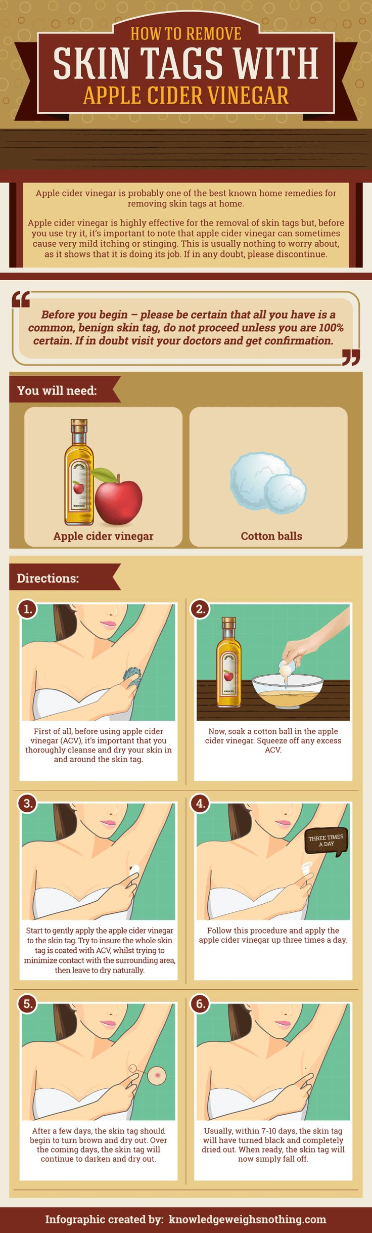 How to remove skin tags infographic. Full post and instructions here: https://knowledgeweighsnothing.com/how-to-remove-skin-tags-with-apple-cider-vinegar/