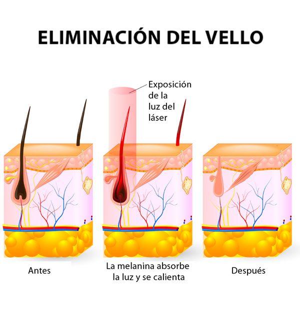 CONOCE CÓMO FUNCIONA LA DEPILACIÓN CON LÁSER ALEXANDRITA  Este tipo de depilación funciona con una longitud de onda de 755nm, que está en la parte infrarroja del espectro de luz. Esta longitud de onda del láser es absorbida en su mayor parte por la melanina y los folículos pilosos... Leer más => http://www.cela.cl/newsletter/depilacion-laser/conoce-como-funciona-la-depilacion-con-laser-alexandrita/  Puedes reservar tu hora de evaluación GRATIS hoy mismo aquí…