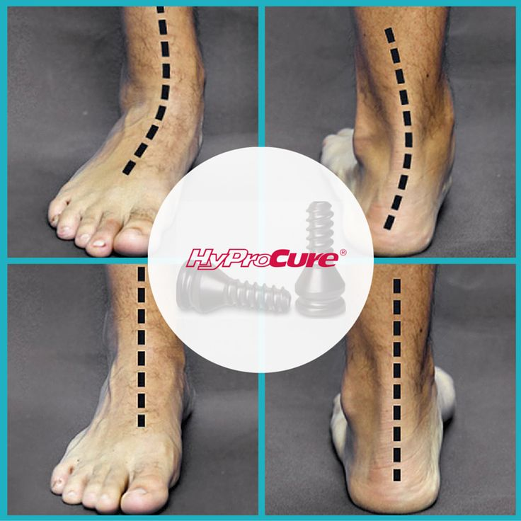 Why is the alignment of your feet and ankles so important? Misalignment places stress on the ligaments, which are bands of fibrous tissue that hold the joint together. Over a period of time, the shear stress can cause chronic pain and weakness.
