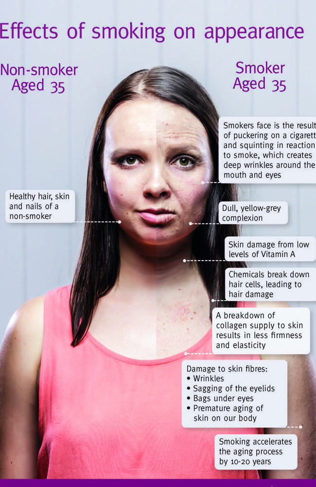 Queensland Health's infographic, detailing exactly how you age if you're a smoker.