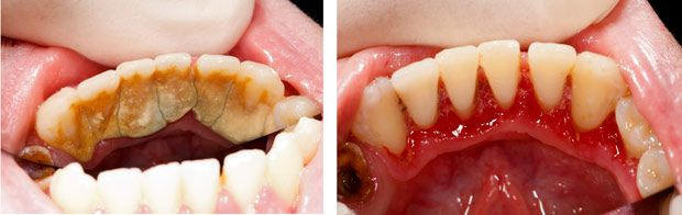 We apologize for the graphic nature of these pictures, but this is a great example of what before and after dental scaling can do! #Granddentalgroup