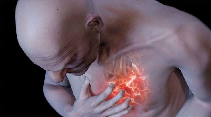 Que es un infarto de miocardio yahoo dating