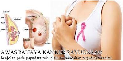 http://jagonyaherbalilasi2.blogspot.co.id/