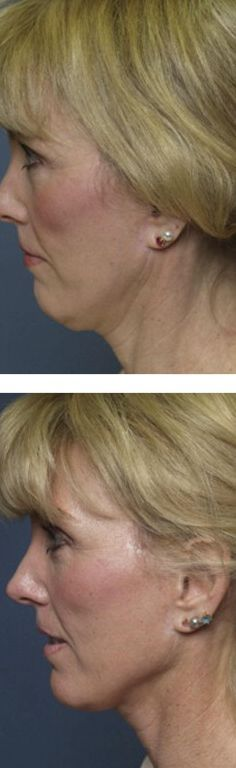 Stymie And Diminish Your Double Chin: Make Your Jaw Area Sharper By Means Of These Facial Gymnastics