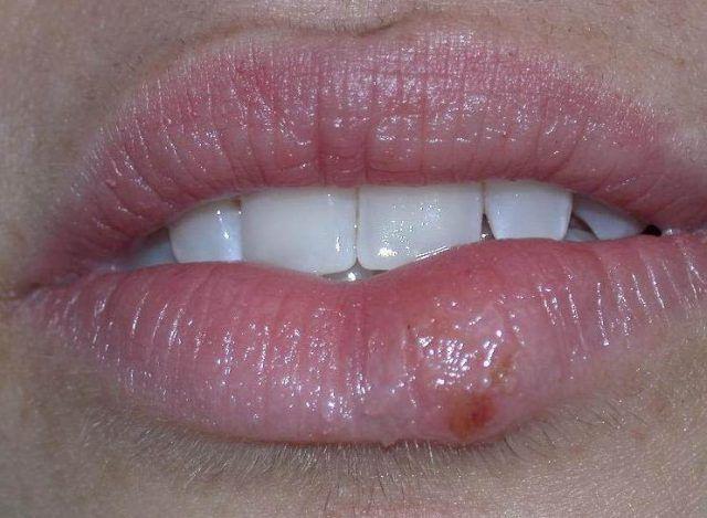 Le bouton de fièvre ou herpès labial apparait sur les lèvres gratte, brûle, pique. Bref, l'enfer! Voici une recette naturelle à base d'argile pour se débarrasser de