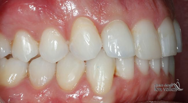 Caso clínico de éxito de ortodoncia Invisalign para tratar la Mordida, ¡en solo 15 meses!
