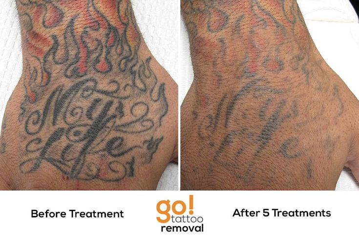 After 5 laser tattoo removal treatments weve removed a