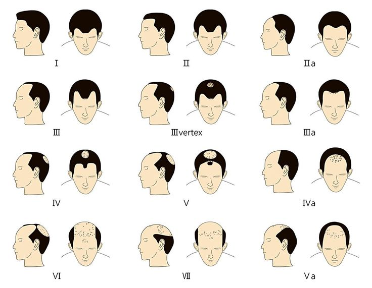 42 Best Hair Transplant Images On Pinterest Hair