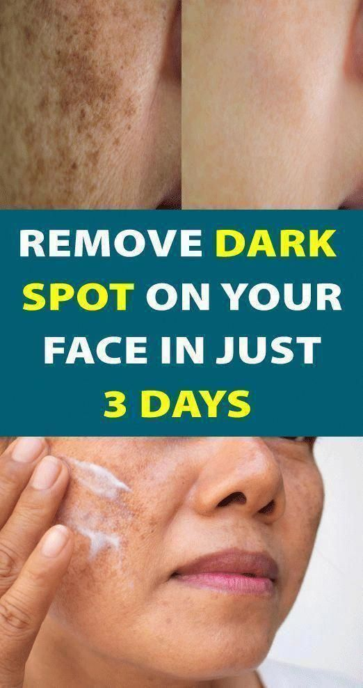 The best way to Eliminate Darkish Spots From Face In just 2 Days #CreamForBrownSpots #NaturalWayToGetRidOfBrownSpotsOnFa…