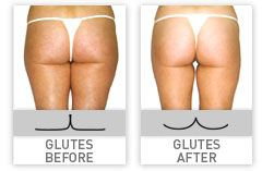 Get ready for summer! These results are from our LPG machine which comes from France and works on cellulite and fat! Using high impact massage & suction you will naturally see reduction and smoothing for those tough areas!
