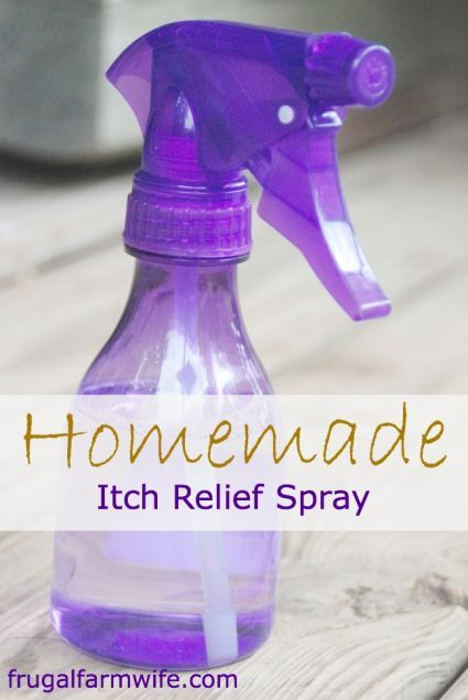 Homemade Itch Relief Spray. I started making this last summer when we got into the chiggers, and it works so well!