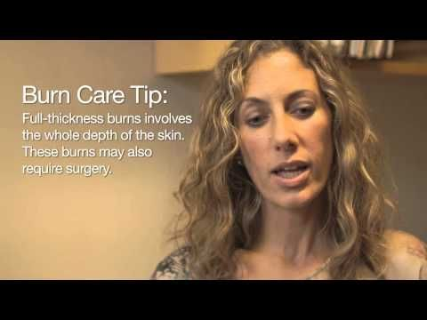 VIDEO: Caring for burns