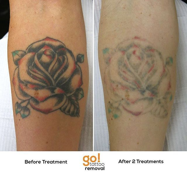 946 Best Tattoo Removal In Progress Images On Pinterest