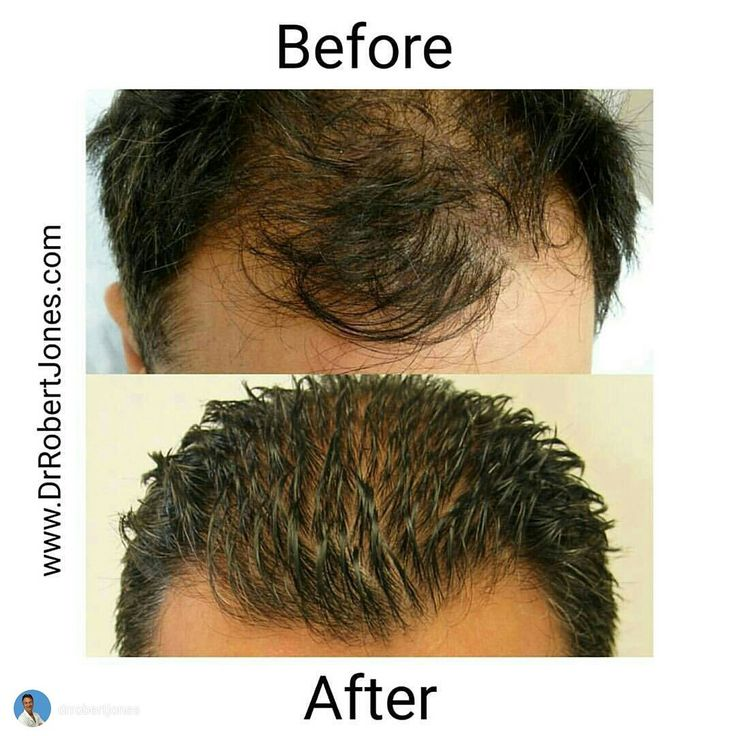 This patient had amazing success with his 3500 graft hair transplant done by Dr. Robert Jones at our Toronto hair transplant clinic