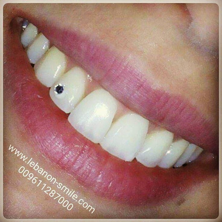 #Lebanon_Smile #Bestdentist #Orthodontist #Johnny_Nassar #Surgery #Sanaa_Moussi_Nassar #Braces #Alldent #Eon #Aligner #Invisalign #Implant #Smile_Lift #Beirut #Dubai #Qatar #Fashionista #Hollywood_Smile #Veneers #Ceramic #Celebrities by lebanon_smile_dental_center Our Invisalign Page: http://www.myimagedental.com/services/cosmetic-dentistry/invisalign/ Other Cosmetic Dentistry services we offer: http://www.myimagedental.com/services/cosmetic-dentistry Google My Business…