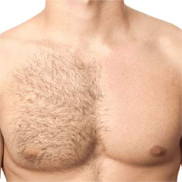 Our chest wax hair removal for men includes waxing of the upper torso area. Our chest wax hair removal allows men to have that smooth, refined look at all times without too much irritation. We try to aim for the least amount of discomfort for the client by using European Soft Wax or hard wax upon quest's request.