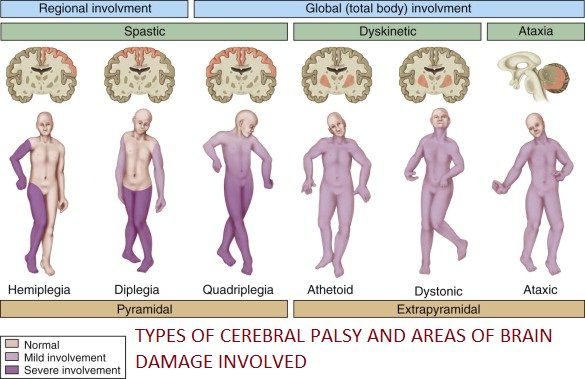 "The term ""cerebral palsy"" (CP) is a blanket term that refers to any occurrence of loss or impairment of motor function. Cerebral palsy affects muscle tone, movement, fine and gross motor skills, re..."