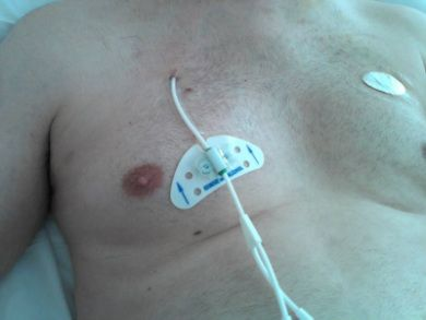 Learn the properties of Hickman line. Forms of central venous catheter http://www.medicalzone.net/medicine-notes---clinical-procedures---forms-of-central-venous-catheter.html