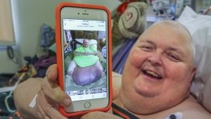 """Mississippi man has 59-kilogram (130 pound) tumour removed. The tumour probably started as an ingrown hair that became infected, swelled and developed its own blood supply, Logan's surgeon, Dr. Vipul Dev, told the Bakersfield Californian. It sprouted from his lower abdomen more than a decade ago. Doctors told him: """"You're just fat, it's just fat,"""" Logan told KERO-TV in Bakersfield. After traveling to California for surgery he can walk again."""