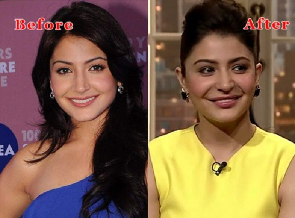 Anushka Sharma's Lip Job Controversy: Actress Vents Out Refuting Surgery