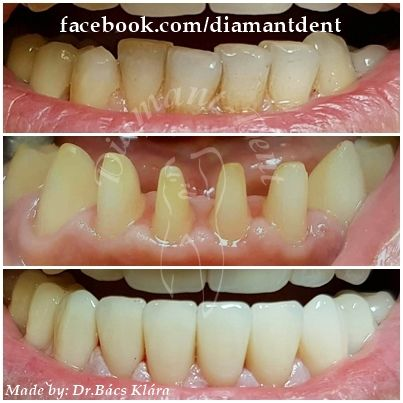 New Smile, new life :) Before After Photo! Have a Bright smile! Diamant Dent
