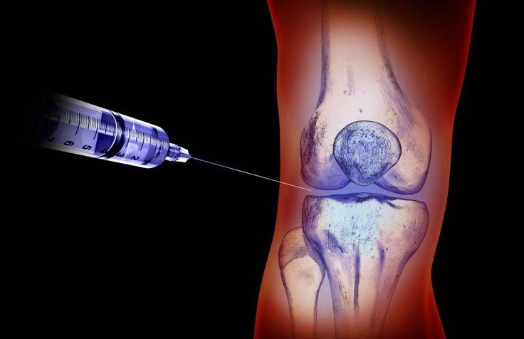 Wie hilft Hyaluronsäure bei Arthrose und Rheuma