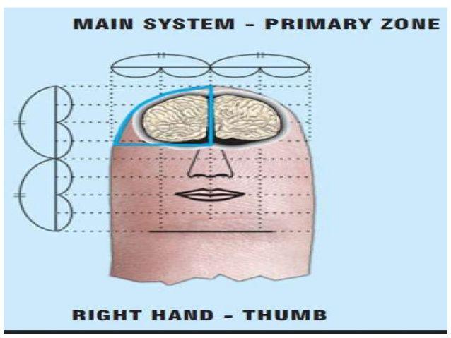 La miastenia gravis • La fatiga de los músculos en el uso repetitivo.  • músculos del ojo Specialy involucrados.  • Sistema Inmune al fallo • Stim ...