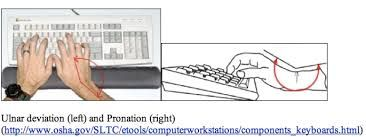Image result for injury from computers prevention