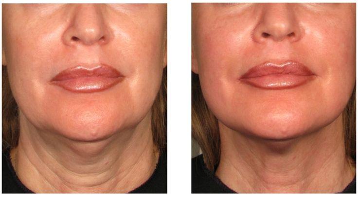 HIFU Treatment for skin lifting - New Beauty Anti-aging és Orvosi Esztétika